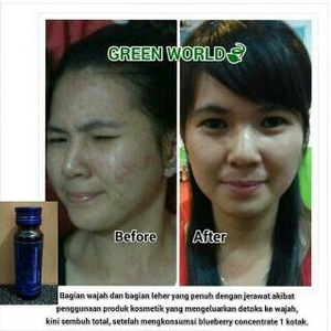testimoni blueberry concentrate